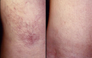 What Varicose Veins Are and How They Can Affect You