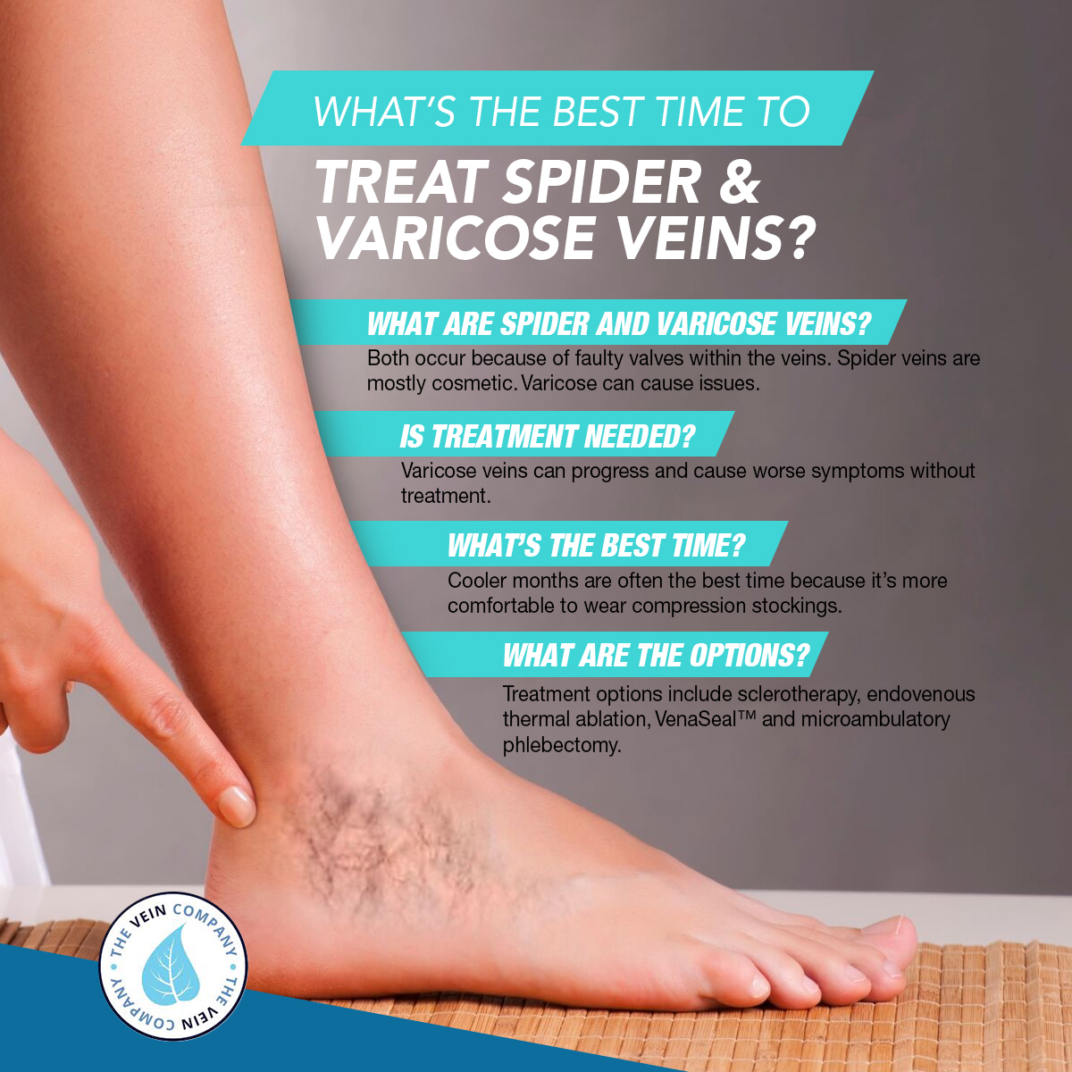 What's The Best Time To Treat Spider & Varicose Veins? [Infographic]