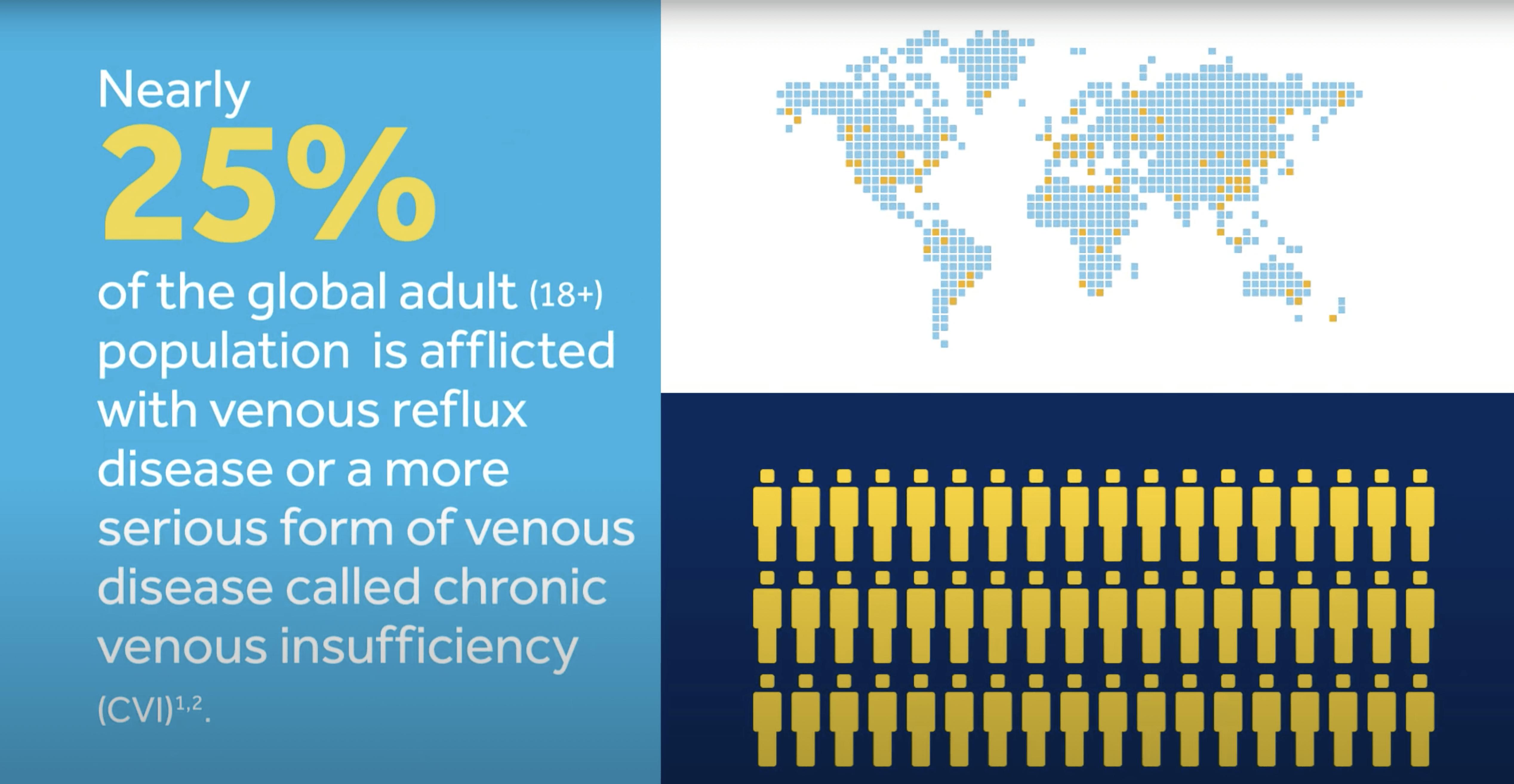 Venous Reflux Disease – Overview