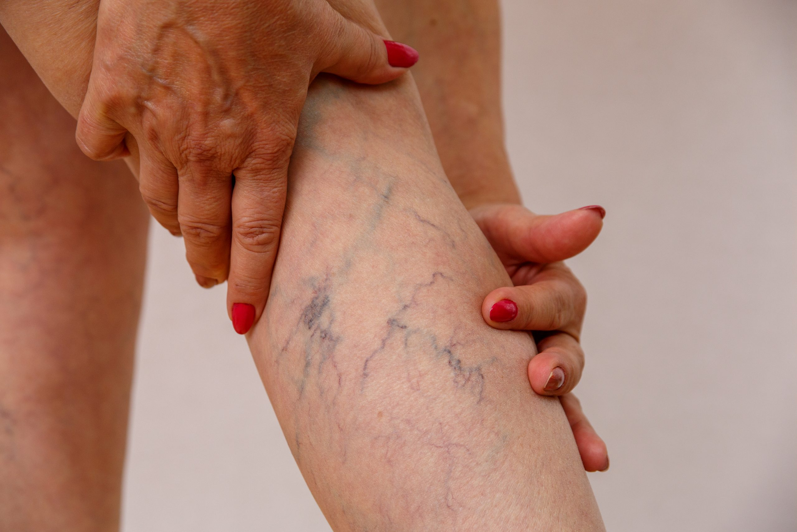 What Varicose Veins Say About Your Legs