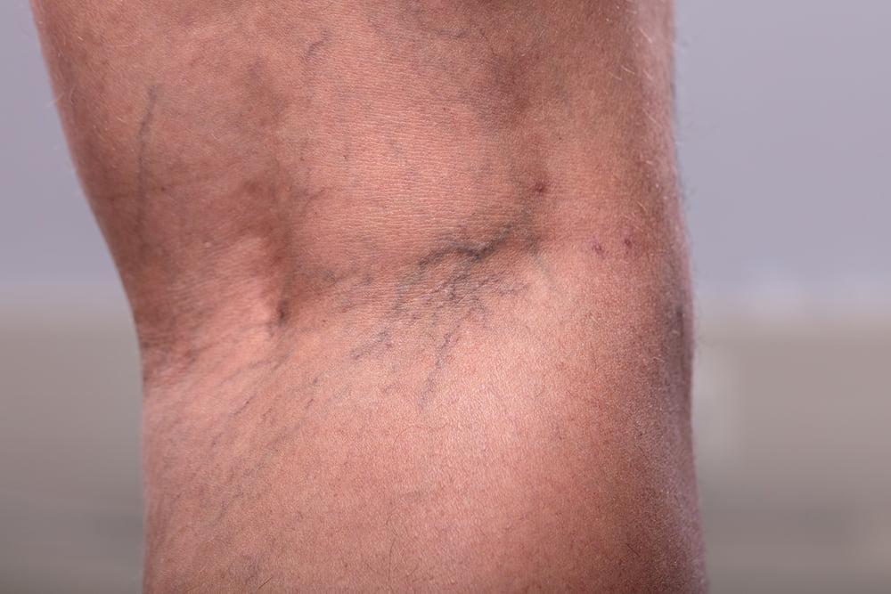 Do Laser Treatments for Spider & Varicose Veins Hurt?
