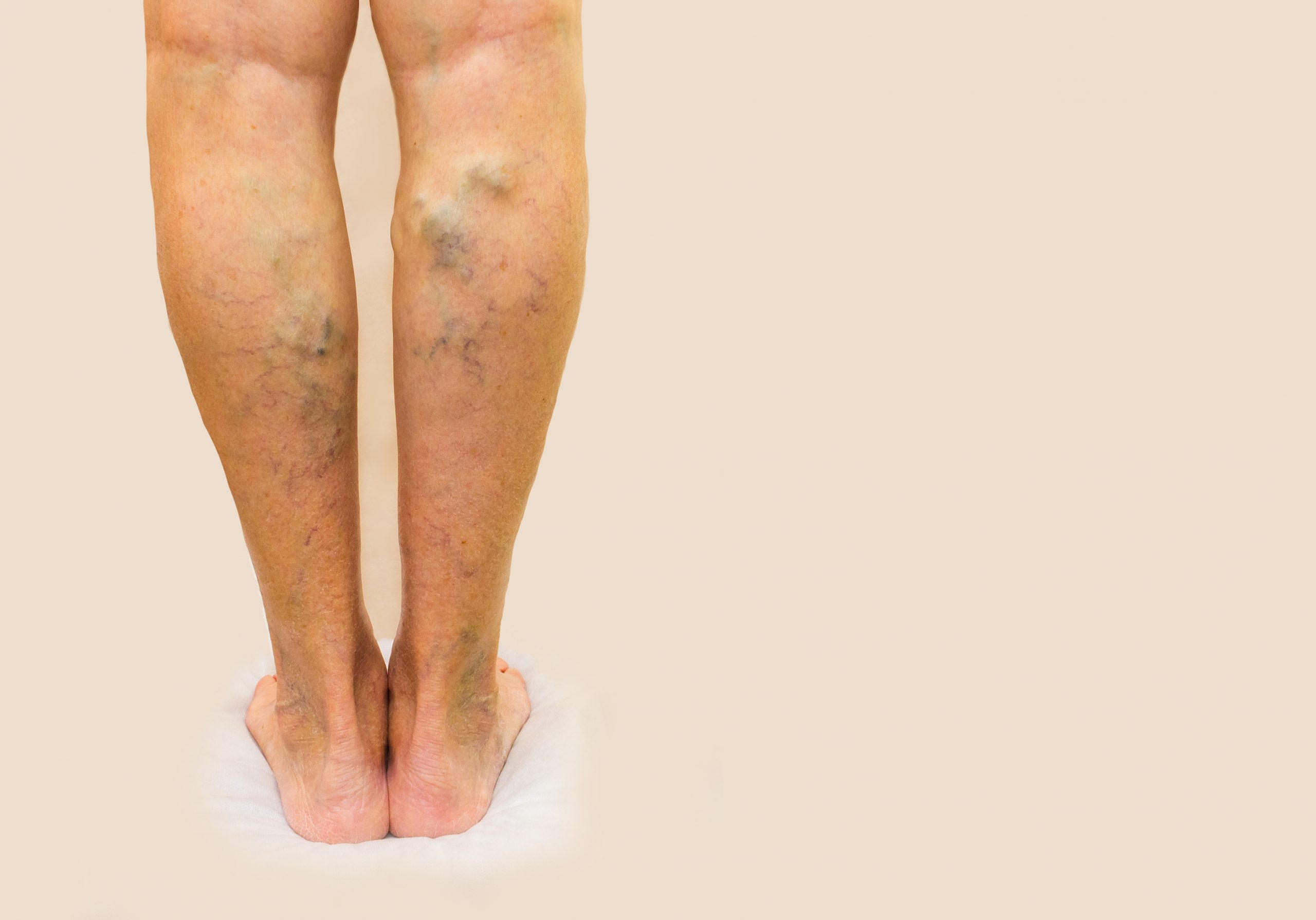 What Are Reticular Veins?