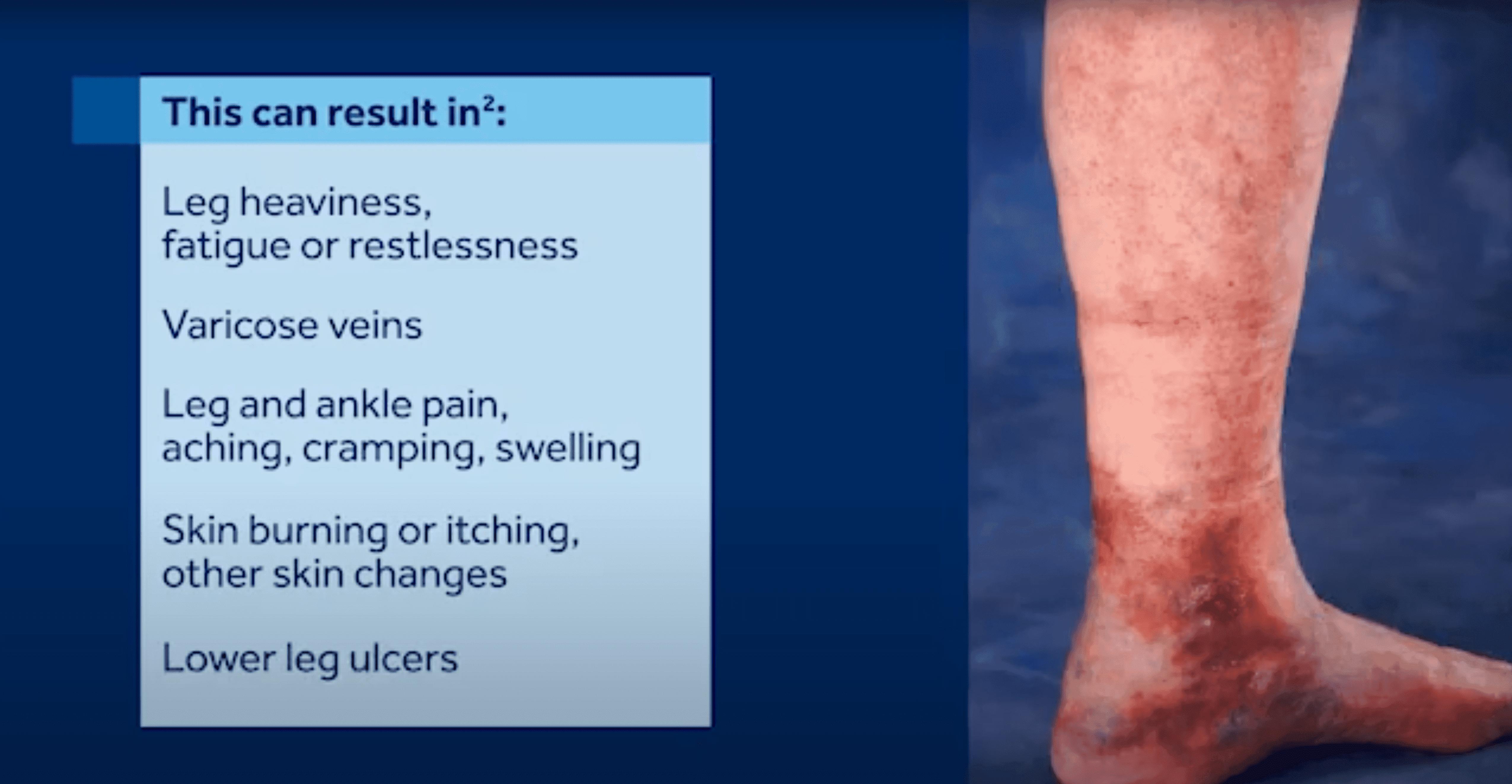 Venous Reflux Disease – Treatment